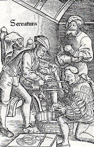 picture of late medieval amputation