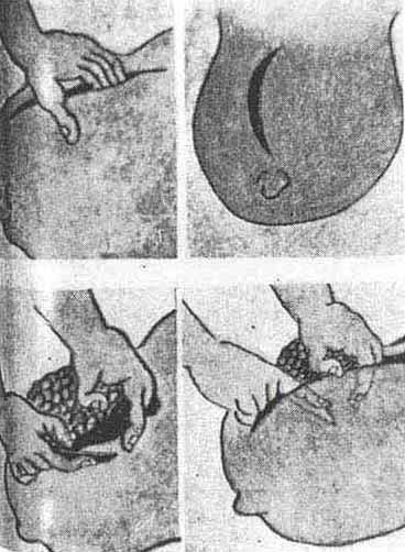 Seishu Hanaoka's technique of breast cancer excision under general anaesthesia